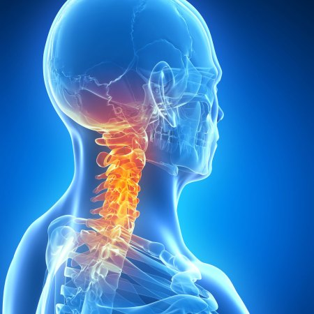 Chiropractic care can help with most neck pain
