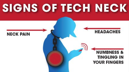 Signs of Tech Neck