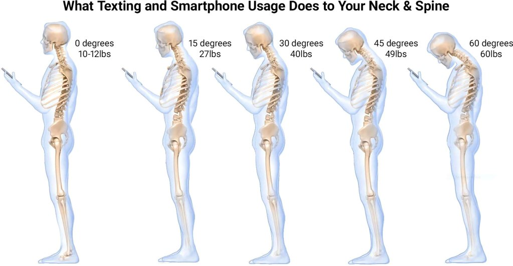 What Texting and Smartphone Usage Does to Your Neck and Spine