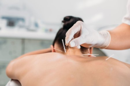 acupuncturist wearing medical gloves placing acupuncture needles on the upper back of a woman lying down