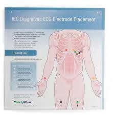 ECG Hookup Wall Chart, English