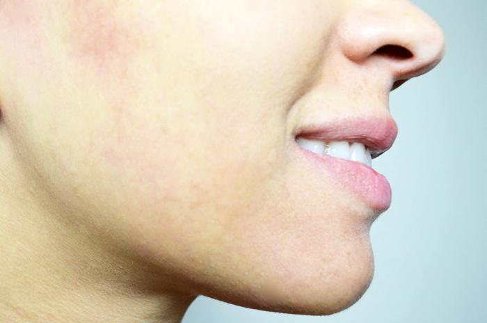 mercredie-blog-beaute-peeling-routine-belle-peau-acne-hormonale-avis-skin-eclipse-nadia-forever-laser-institut-geneve-medecine-esthetique-apres