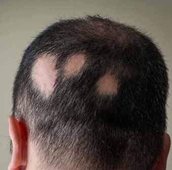 Johannes Ramirez Boden, MD - Vitality and Wellness Centers: Help For Alopecia! (Hair Loss)