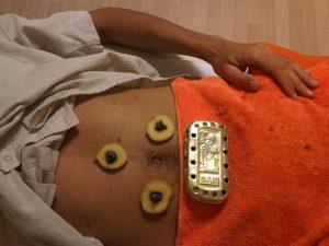 Moxibustión con Jengibre y caja en la zona abdominal