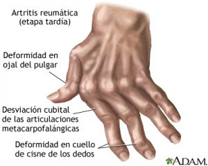 artritis-reumatoide-medline