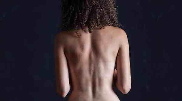 dolor lumbar, un caso clinico