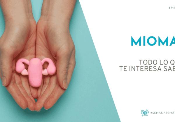Miomas uterinos | Todo lo que te interesa saber
