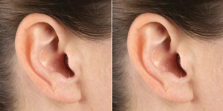 two images of a close up ear with a nearly invisible in-the-ear (ITE) hearing aid inside of it