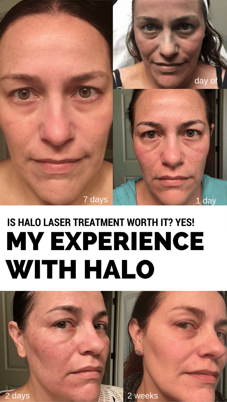 Is Halo Laser Treatment Worth It? Yes! My Experience with Halo by Sciton