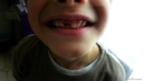 perdre-une-dent-incisive
