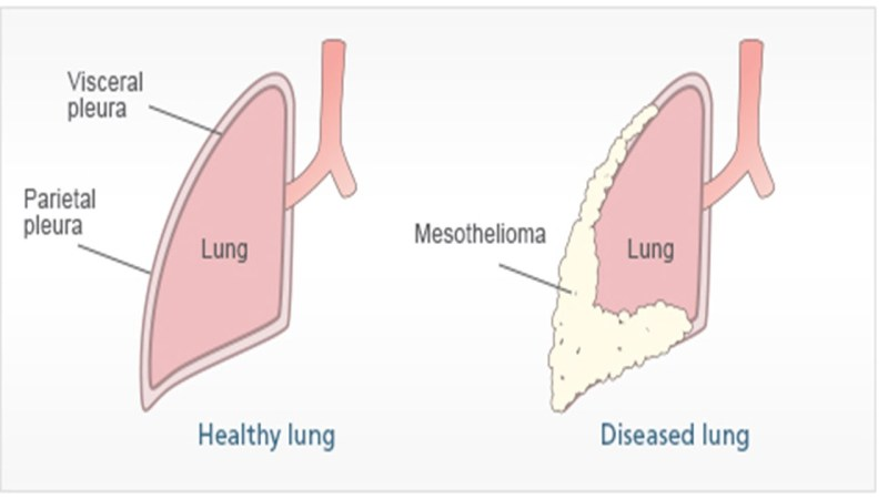 Image Result For Mesothelioma Overview Of Malignant Mesothelioma Cancer