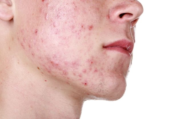 Image result for Acne