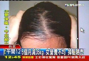 5個月減35kg!女營養不均 掉髮險禿