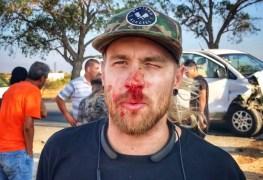 "Sabaton - SABATON In A Car Crash: ""We're All Broken, Badly Beaten, Bleeding & Stitched Up"""
