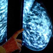 Patients to 'bear cancer drug cost'