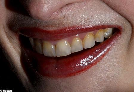 helena teeth