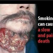 Graphic pictures on cigarette packs