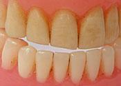 Teeth: bitey