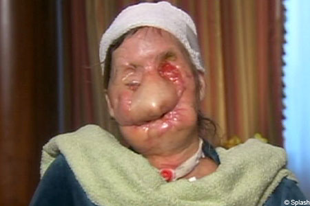 Mauled: Charla Nash suffered horrific injuries from attack by chimp