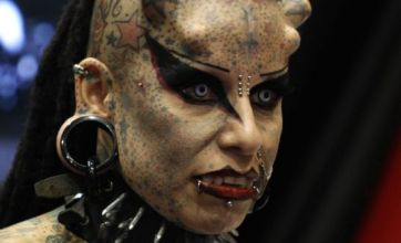 'Vampire' woman gets 'horns' implanted