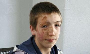 Boy, 13, who suffered horrific burns to complete face reconstruction