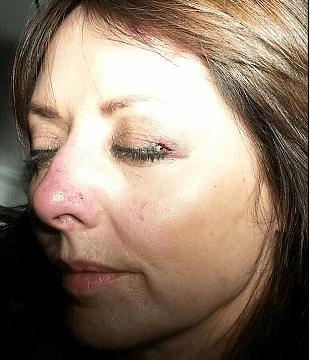 Carol Vorderman denies she used her 'broken nose' to secretly go under the knife