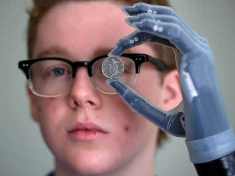Teenage amputee fitted with bionic hand controlled by iPhone 5
