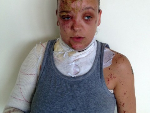 Acid attack victim burned on her doorstep appeals for help in catching assailant