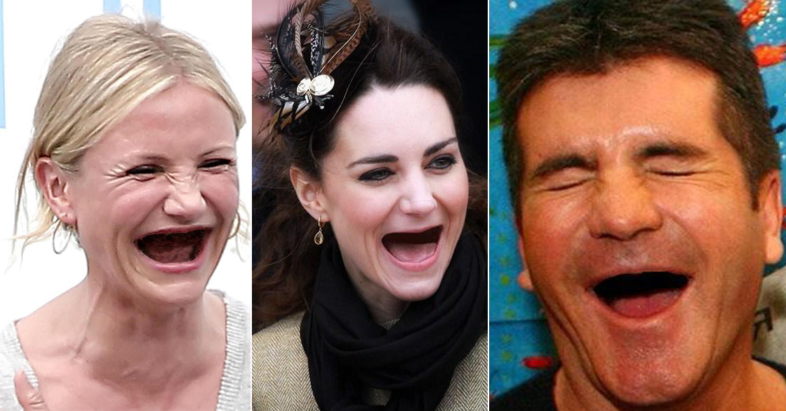 Gallery: Celebrities without teeth