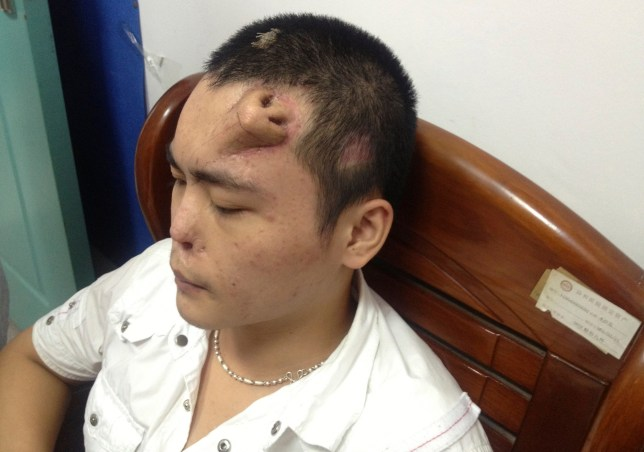 Chinese man grows new nose on his forehead
