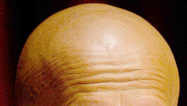 Undated file photo of a bald man as a pioneering technique that generates new hair follicles could help to banish baldness, research suggests. PRESS ASSOCIATION Photo. Issue date: Monday October 21, 2013. For the first time, scientists have shown that it is possible to renew follicles capable of sprouting human hair. The follicles grow naturally from clumps of cells called dermal papillae that play a pivotal role in hair growth. See PA story HEALTH Hair. Photo credit should read: Gareth Copley/PA Wire