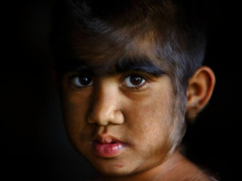 Poverty-stricken family with 'werewolf syndrome' receive free laser treatment