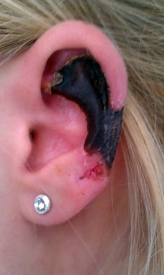 recluse spider bite 'eats' hole in young woman's ear
