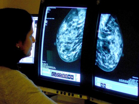 Cancer diagnosis 'costing sufferers nearly £7,000 a year'