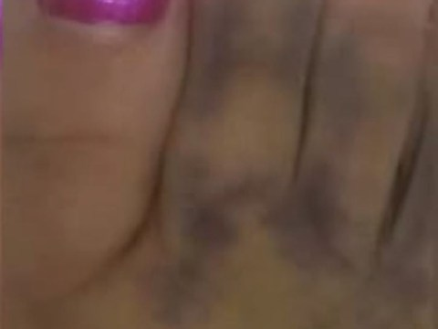 Woman finds image of Jesus in her toe bruise