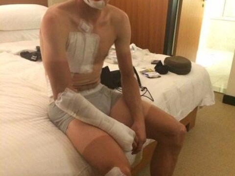 Bed and brake fast: Danish cyclist Matti Breschel floored by flying mattress