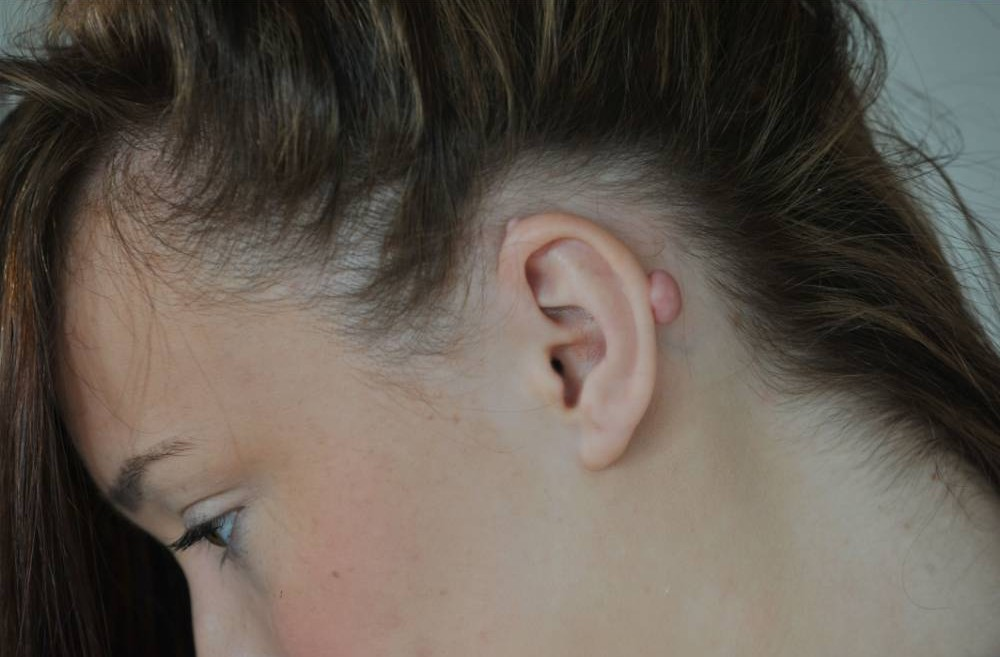Teenager devastated after NHS refuses to remove earring scar tissue