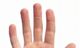 Penis size can be determined by finger length, say
