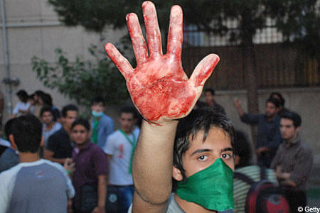 Written in blood: A supporter of defeated presidential candidate Mirhossein Mousavi