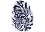 Fingerprint: sufferers of hand-foot syndrome can lose theirs