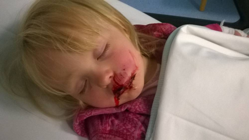 Parents of toddler left scarred by dog attack reveal anger at lack of police action