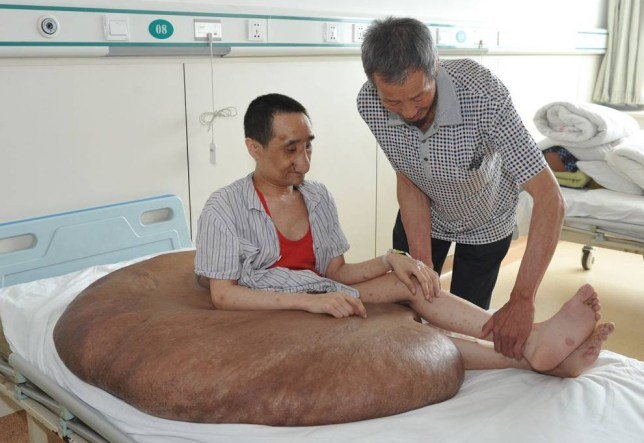 """Mandatory Credit: Photo by HAP/Quirky China News/REX (3898402b)  Yang Jianbin in hospital before having the tumour removed  Man has 'world largest tumour' removed, Beijing, China - 04 Jul 2014  Doctors have removed what could be the world's largest tumor from a man in Beijing, China.  Yang Jianbin, 37, was born with a dark birth mark on the right side of his lower back/bottom. From the age of 9 this mark began to grow into a tumour. By the time Yang was 12 it had grown to the size of a fist and he received surgery to remove it. However, it quickly started to grow again. When he recently checked into hospital in Beijing the tumour weighed an enormous 110kg. Chief surgeon Chen Minliang said Yang suffers from Neurofibromatosis. """"We have seen neurofibromatosis patients before, but this is the biggest nerve tumor we ever saw.""""  The giant tumor greatly affected Yang's life. He says: """"I can only lie down or sit on bed all day long."""" Removal surgery involved 9 doctors and took 16 hours. During the surgery Yang received more than 5000ml of blood, which is more than the entire amount an adult's body holds. Yang is now recovering well and it expected to be discharged later this month."""