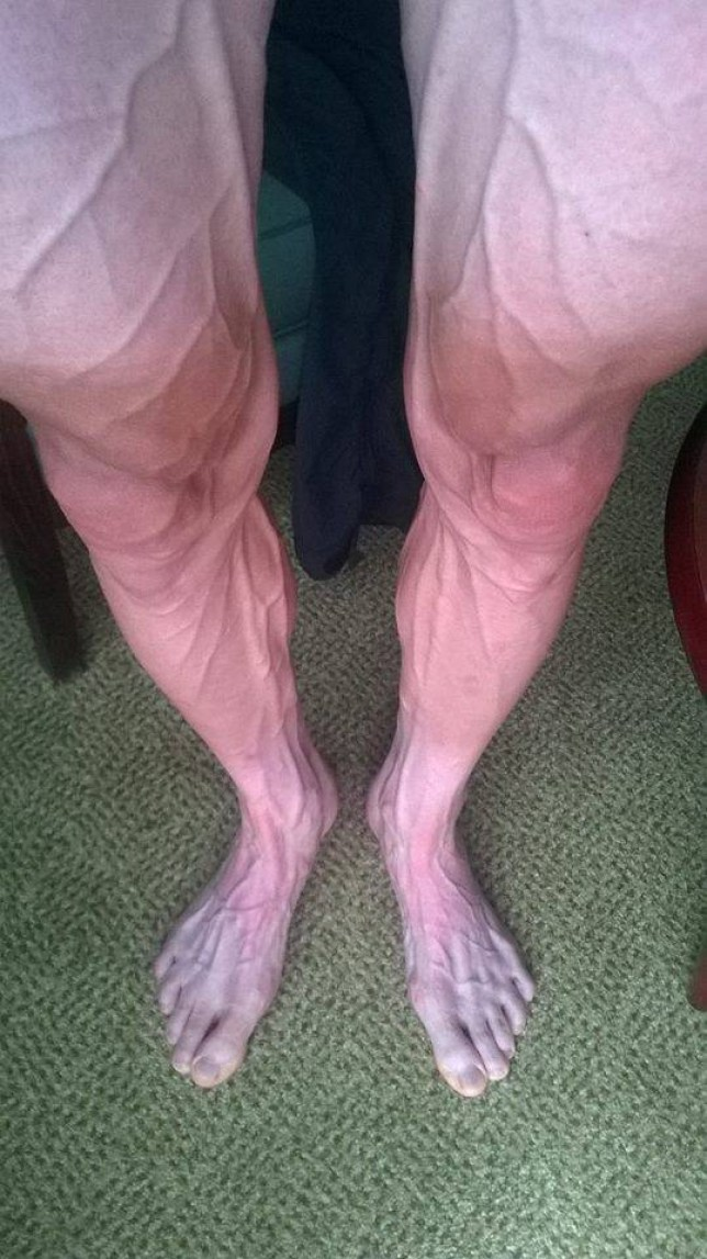 facebook legs.jpg Bartosz Huzarski So they look more or less my legs after stage 18 of the Tour de France. And here you have to squeeze them a little more strength for the last 3 days. Phew I can tell you that we have with the downhill