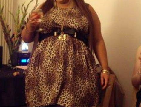 25-year-old loses a whopping nine stone after dad pays £10,000 for her gastric band surgery