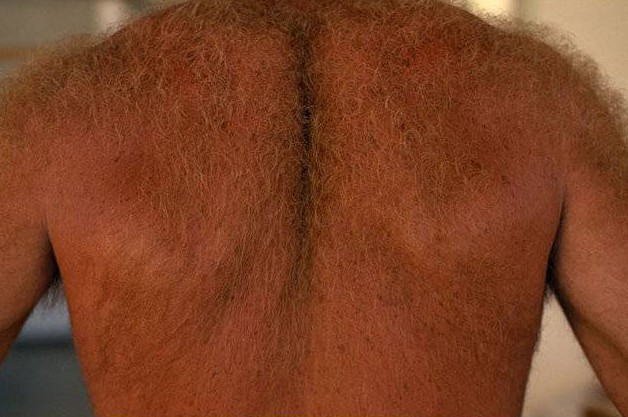 Is a man's hairy back becoming as acceptable as a woman's hairy bush?