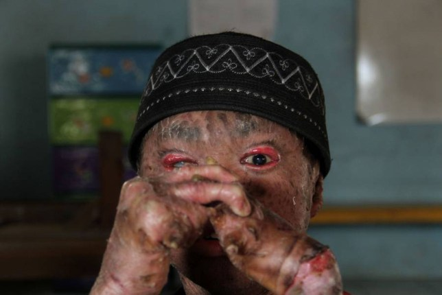 Mandatory Credit: Photo by Nurcholis/REX (2346809h).. Ari Wibowo.. 16-year-old boy suffers from skin condition that can turn him into a statue, Tangerang, Banten, Indonesia - 15 May 2013.. 16-year-old Ari Wibowo suffers from a terrible skin condition that means his body looks like it is covered in scales. The condition affects all of the skin on his body - from the soles of his feet up to his head. Every 1 or 2 hours Ari has to moistened his body with water and cover it in lotion. If he doesn't take these measures his skin starts to harden and ultimately becomes so stiff that he is frozen like a statue and unable to move...