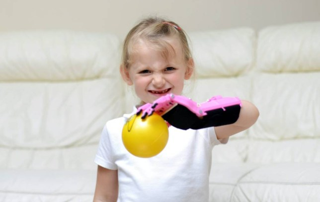 Haley Fraser, aged five from Inverness with her new prosthetic hand. See SWNS story SWSUPER; A little girl who was born without a hand has been fitted with a UK-first bionic prosthetic -- a superhero-themed PURPLE arm. Cute Hayley Fraser, five, was born without any fingers on her left hand and would often try to hide her stump in photographs or at nursery. Her proud parents David and Zania went to the NHS for help but when they refused to offer her a prosthetic they turned to the internet. A new US-based charity has now made her a pretty pink and purple Ironman-inspired robo-limb for free - the first ever to have been made for a British child.