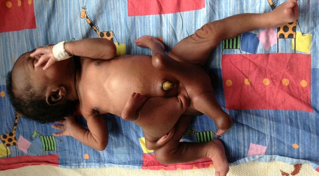 Baby born with eight limbs has extra arms and legs removed