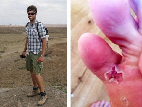 Insect and hundreds of eggs burst from backpacker's foot after African trip