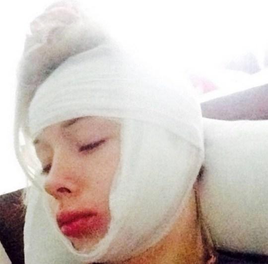 Human Barbie doll Valeriya Lukyanova after attack in Odessa -1- must credit east2west news, queries Will Stewart 007 985 998 94 00.jpg